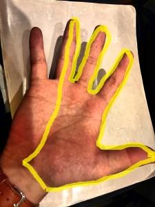 手根管症候群 正中神経 感覚障害①