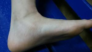 外脛骨 実際の写真①