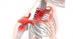 肩関節付近 炎症 フリー