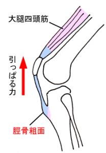 オスグット四頭筋牽引力-画像