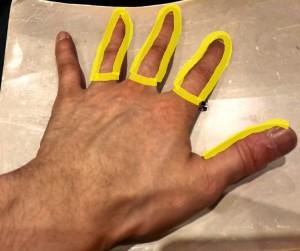 手根管症候群 正中神経 感覚障害②(背側)