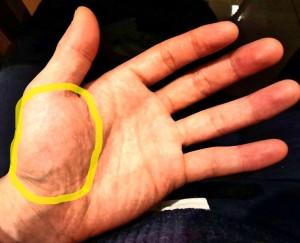 手根管症候群 母指球筋萎縮