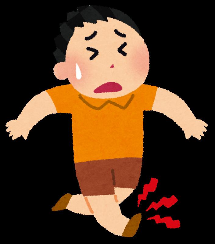有痛性外脛骨 発症原因 捻挫